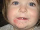 Ребенок сыпь на подбородке: причины, диагностика, лечение